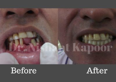 DrNK Crowns And Bridges Before After 5