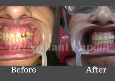 DrNK Crowns And Bridges Before After 2