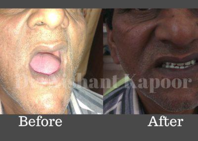 DrNK Dentures Before After 1