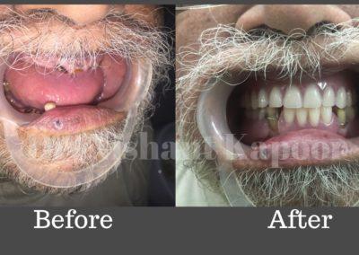 DrNK Dentures Before After 2