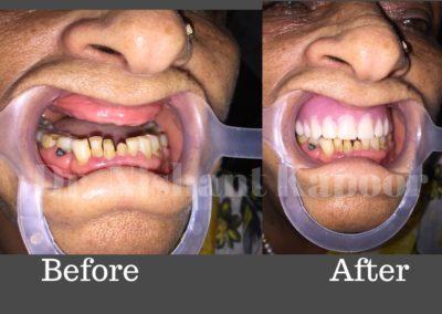 DrNK Dentures Before After 3