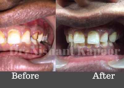 DrNK Crowns And Bridges Before After 7
