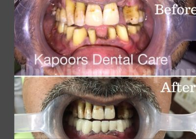 DrNK Crowns And Bridges Before After 10