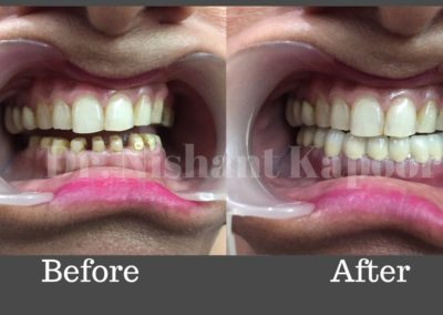 DrNK Crowns And Bridges Before After 8