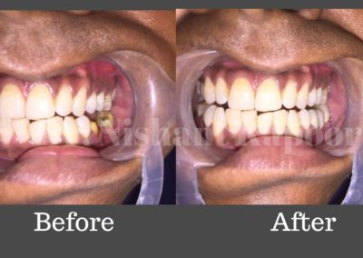 DrNK Crowns And Bridges Before After 9